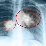 Chụp X-quang có thể phát hiện ung thư phổi hay không?