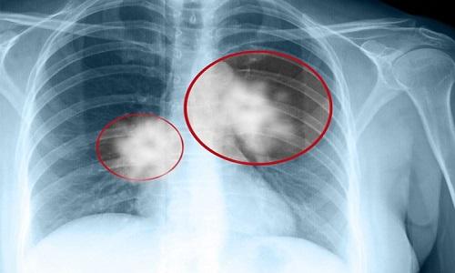 Chụp X-quang lồng ngực thẳng đứng đúng cách giúp phát hiện ung thư phổi