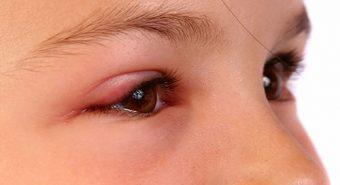 Có thể trị khỏi bệnh ung thư mi mắt hay không?