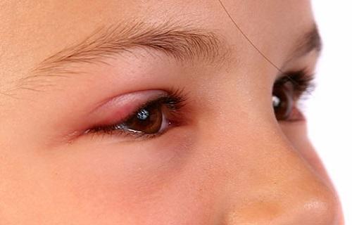 Bệnh ung thư mi mắt nếu được điều trị sớm sẽ có khả năng khỏi bệnh