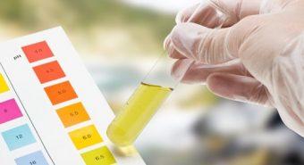 Có thể dự đoán nguy cơ ung thư cổ tử cung dựa trên xét nghiệm nước tiểu
