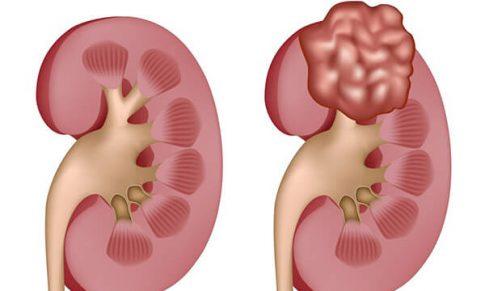 Công bố hai loại thuốc điều trị ung thư thận mới
