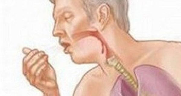 Dấu hiệu nhận biết khi bị trào ngược dạ dày