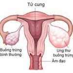 Dấu hiệu phát hiện ung thư buồng trứng không thể bỏ qua