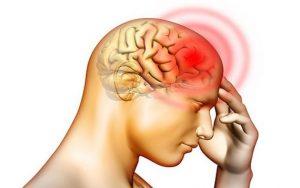 Thiếu máu não do hẹp động mạch cảnh