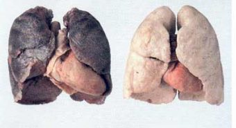 Dấu hiệu và nguyên nhân bệnh ung thư phổi