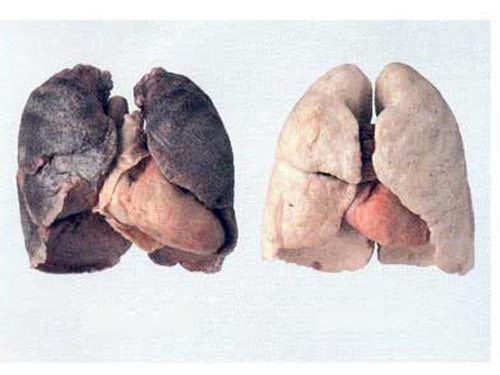 Nắm rõ nguyên nhân bệnh ung thư phổi nhằm phòng tránh bệnh tốt nhất