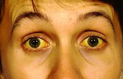 Dấu hiệu viêm gan B cấp tính
