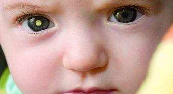 Di truyền có phải là nguyên nhân gây bệnh ung thư mắt?