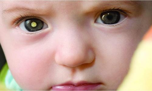 Nguyên nhân gây bệnh ung thư mắt có liên quan đến yếu tố di truyền