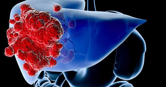 Tùy thuộc vào giai đoạn của bệnh mà điều trị ung thư biểu mô tế bào gan bằng phương pháp nào