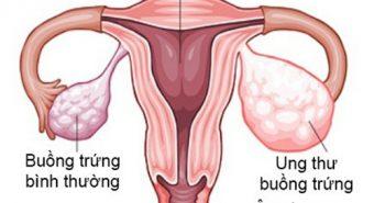 Điều trị ung thư buồng trứng bằng nguyên liệu tại gia