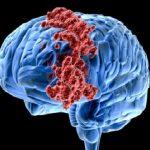 Điều trị ung thư não bằng kỹ thuật u nguyên tế bào xốp