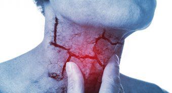 Điều trị ung thư thanh quản bằng cách nào?