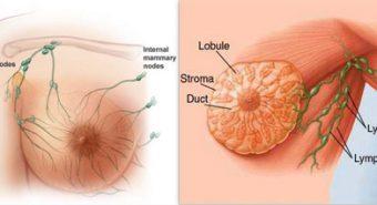 Đồ ăn nhanh – một trong những nguyên nhân gây bệnh ung thư vú