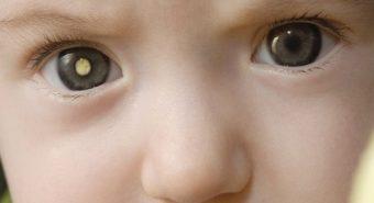 Đừng bỏ qua những dấu hiệu nhận biết ung thư mắt