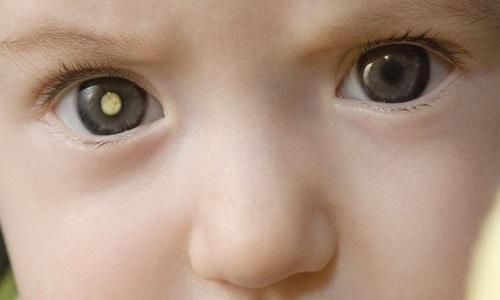 Cần lưu ý những dấu hiệu nhận biết ung thư mắt