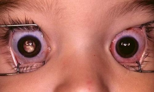 Bệnh ung thư võng mạc ở trẻ đang ngày càng gia tăng