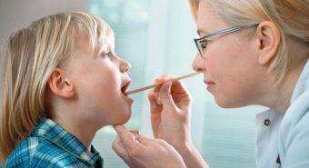 Giải đáp thắc mắc viêm họng hạt có lây không để phòng tránh