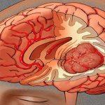Giải đáp những vấn đề về bệnh u não