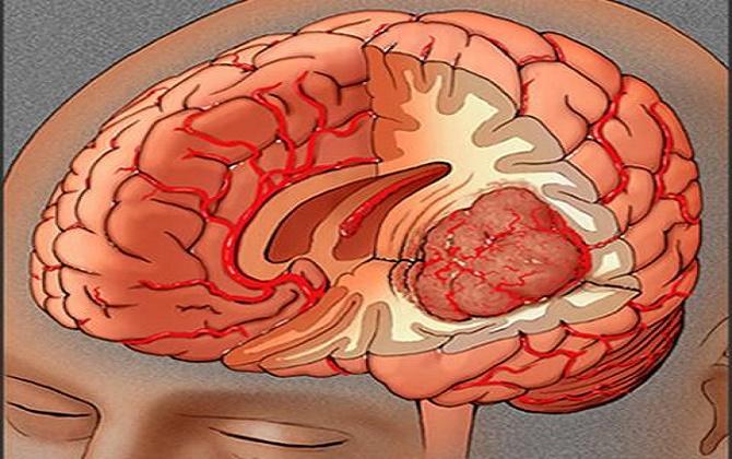 Bệnh u não nên được điều trị sớm