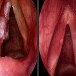 Hiểm họa từ bệnh ung thư thanh quản