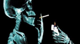 Hút thuốc lá là nguyên nhân gây ung thư tủy xương