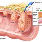 Loại dầu có thể diệt tới 90% tế bào ung thư đại tràng