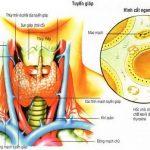 Một số dấu hiệu nhận biết ung thư tuyến giáp