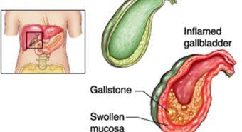 Một số nguyên nhân gây bệnh ung thư túi mật