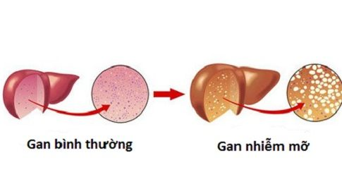 Nguyên nhân bệnh gan nhiễm mỡ đến từ đâu?