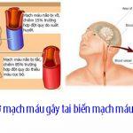 Tìm hiểu nguyên nhân gây ra tai biến mạch máu não