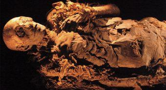 Tiết lộ nguyên nhân gây ung thư trực tràng từ xác ướp thế kỷ 18