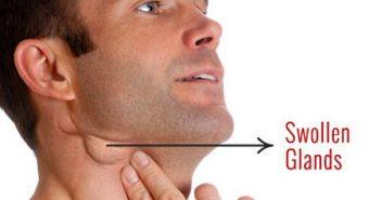 Những biểu hiện ung thư miệng nhiều người thường bỏ qua