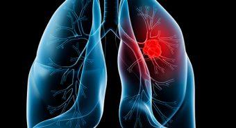 Những dấu hiệu cảnh báo ung thư phổi bạn đọc nên biết