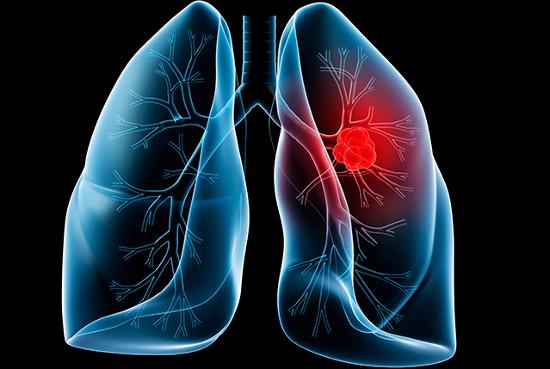 Dấu hiệu cảnh báo ung thư phổi