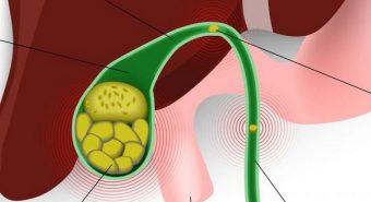 Những dấu hiệu phổ biến của bệnh ung thư túi mật
