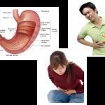Những lưu ý cần thiết cho người bị bệnh đau dạ dày