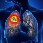 Thống kê những nguyên nhân hàng đầu gây ra bệnh ung thư phổi