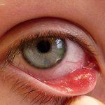 Những triệu chứng ung thư mắt cần nhận biết