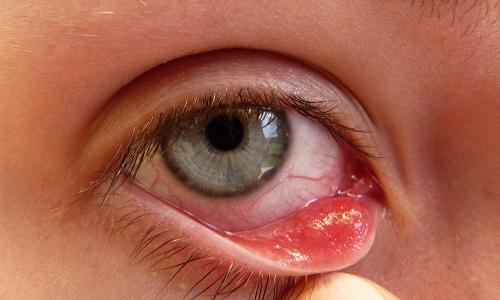 Xuất hiện nốt nhỏ trong mắt có thể là triệu chứng ung thư mắt