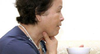 Nuốt nghẹn có thể là dấu hiệu của ung thư thực quản
