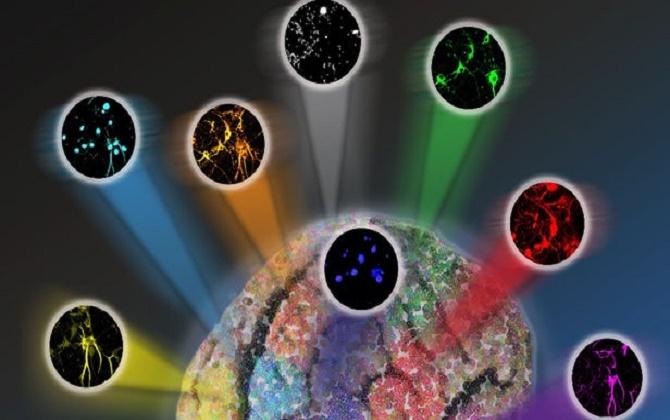 Phát hiện sớm bệnh u não bằng pháp soi kính hiển vi có vai trò rất trọng