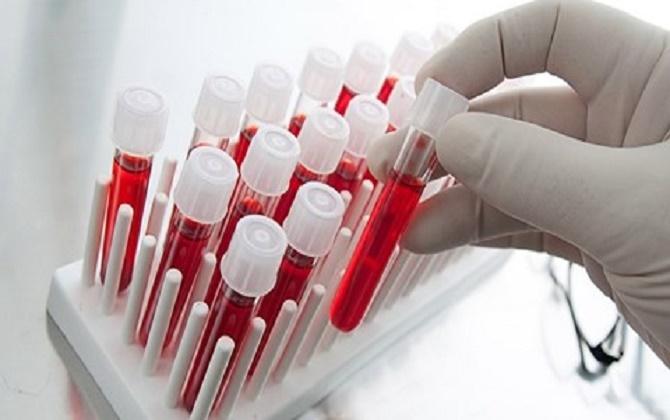 Phát hiện ung thư não sớm sẽ giúp việc điều trị hiệu quả