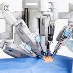 Phẫu thuật, cứu sống người bệnh ung thư trực tràng bằng robot