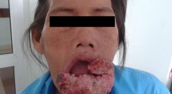 Phẫu thuật thành công cho người bệnh ung thư môi dưới lan rộng