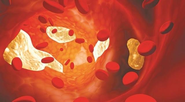 Máu nhiễm mỡ - căn bệnh không chỉ dành cho người béo