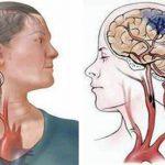Phòng tránh tai biến mạch máu não từ sớm