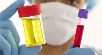 Phụ nữ cần cẩn thận với các triệu chứng bệnh ung thư bàng quang