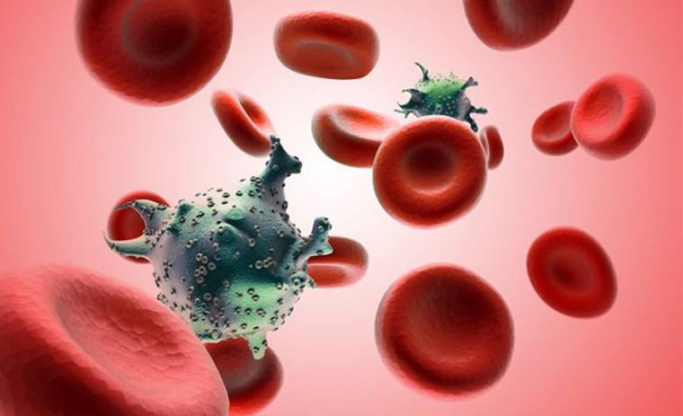 Hình ảnh tế bào ung thư máu